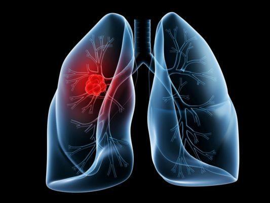 Статистика рака легких