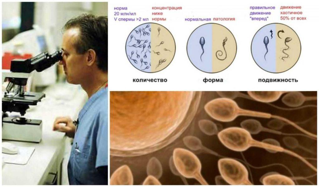 lechitsya-li-spermatogenez