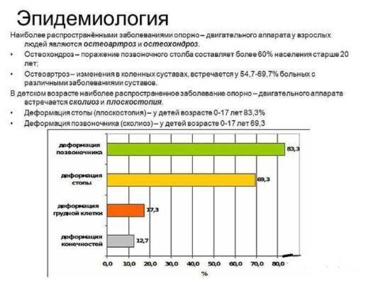 Статистика заболевания плоскостопием