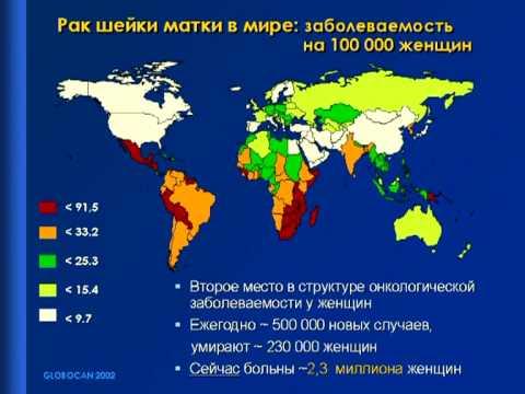 Статистика онкологии